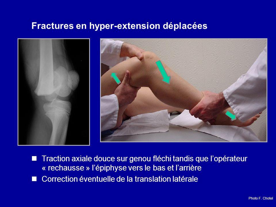 Fractures en hyper-extension déplacées