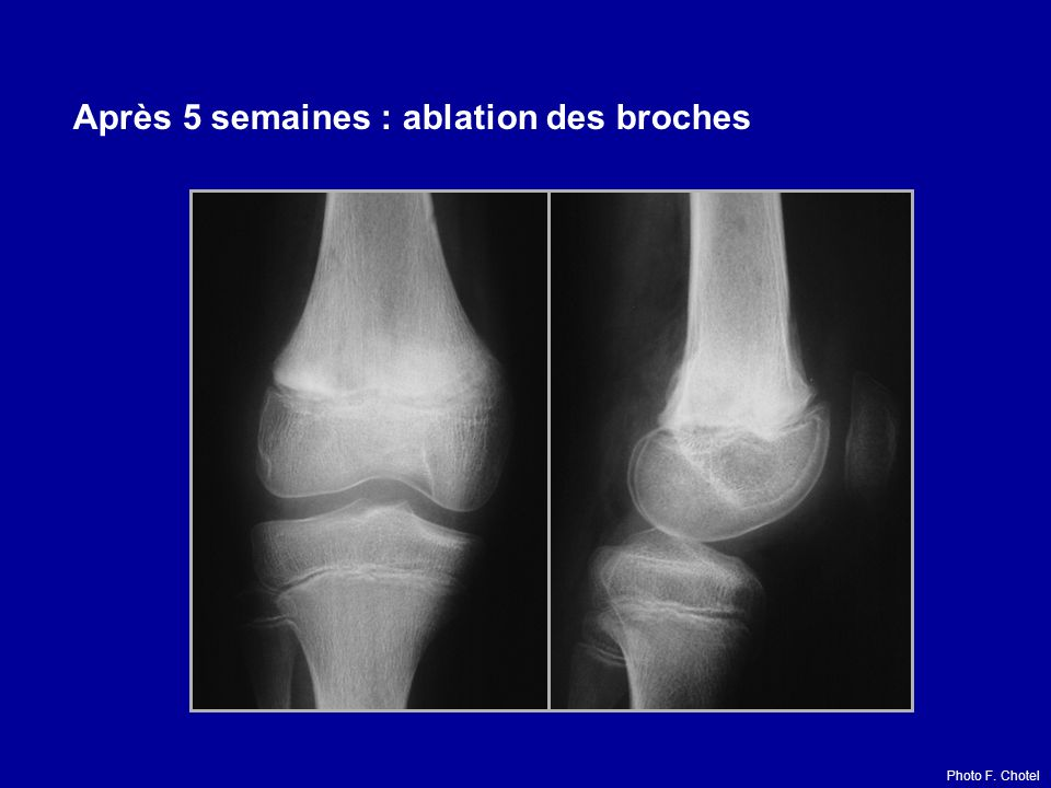 Après 5 semaines : ablation des broches