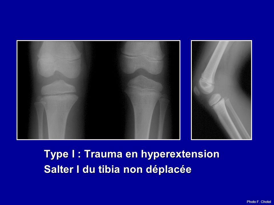 Type I : Trauma en hyperextension Salter I du tibia non déplacée