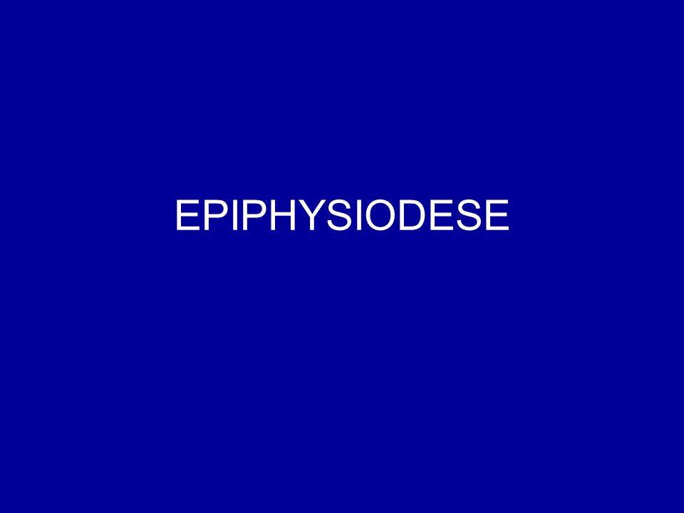 EPIPHYSIODESE