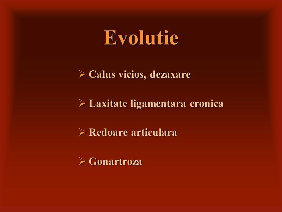 Evolutie Calus vicios, dezaxare Laxitate ligamentara cronica