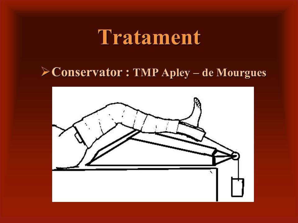Tratament Conservator : TMP Apley – de Mourgues