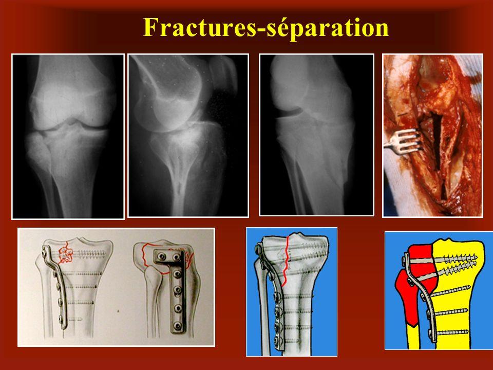 Fractures-séparation