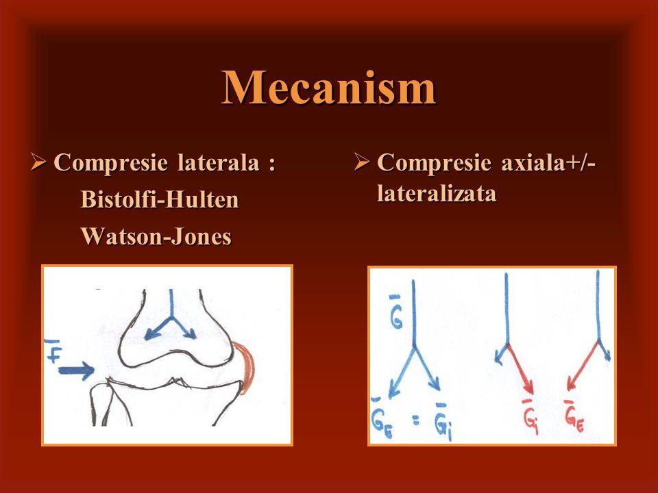 Mecanism Compresie laterala : Bistolfi-Hulten Watson-Jones