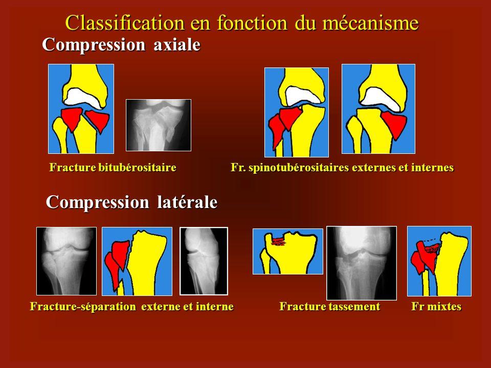 Classification en fonction du mécanisme