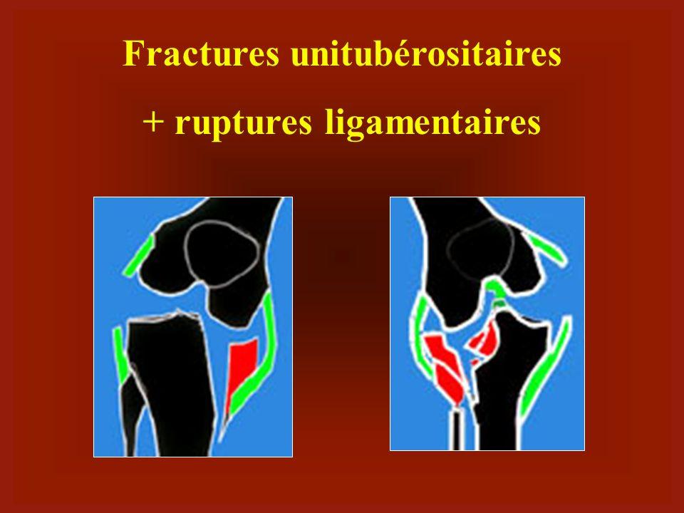 Fractures unitubérositaires + ruptures ligamentaires