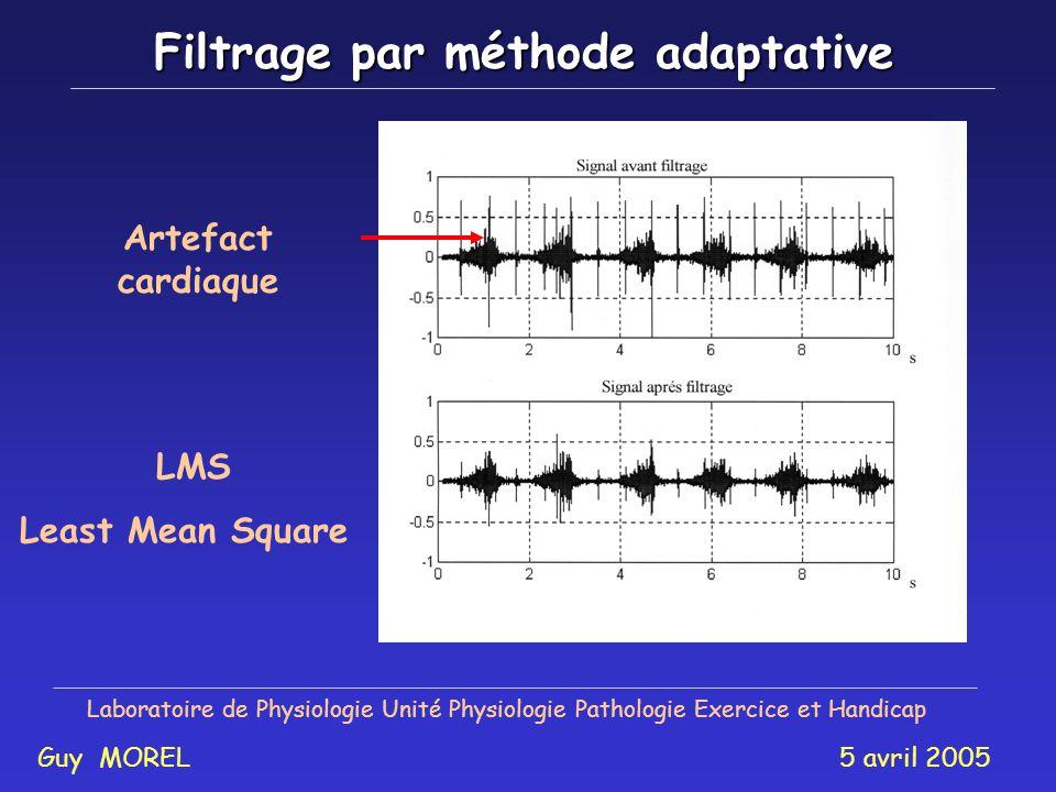 Filtrage par méthode adaptative