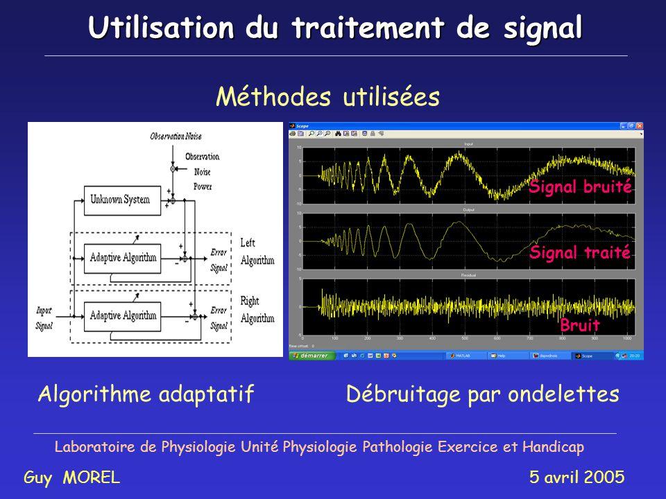 Utilisation du traitement de signal