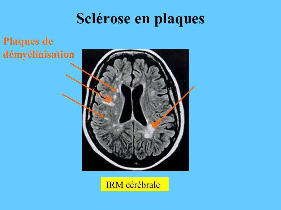 Sclérose en plaques Plaques de démyélinisation IRM cérébrale
