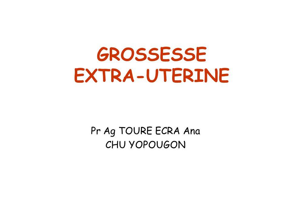 GROSSESSE EXTRA-UTERINE