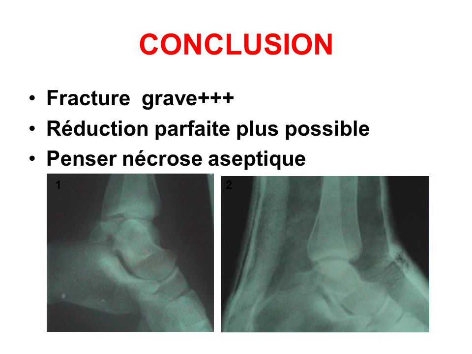 CONCLUSION Fracture grave+++ Réduction parfaite plus possible