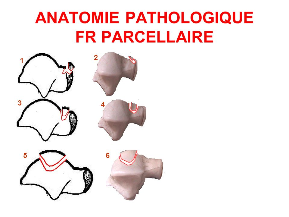 ANATOMIE PATHOLOGIQUE FR PARCELLAIRE