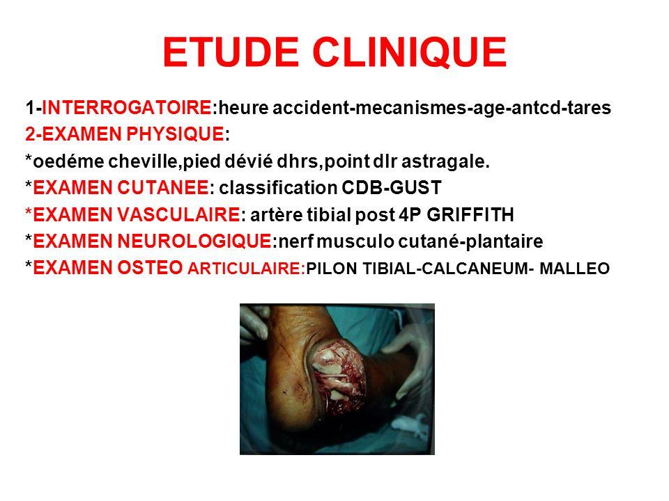 ETUDE CLINIQUE 1-INTERROGATOIRE:heure accident-mecanismes-age-antcd-tares. 2-EXAMEN PHYSIQUE: *oedéme cheville,pied dévié dhrs,point dlr astragale.