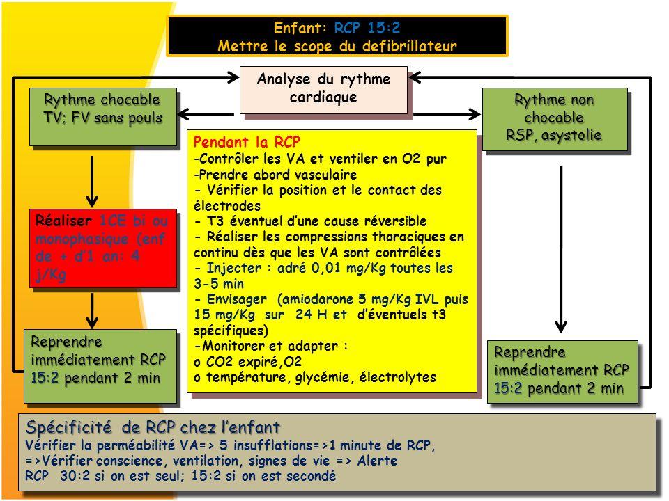 Mettre le scope du defibrillateur Analyse du rythme cardiaque