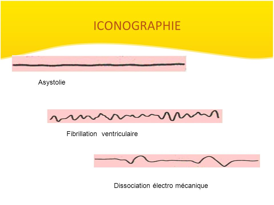 ICONOGRAPHIE Asystolie Fibrillation ventriculaire