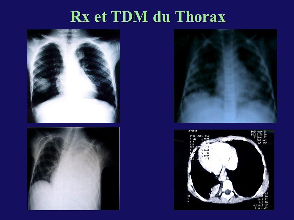 Rx et TDM du Thorax