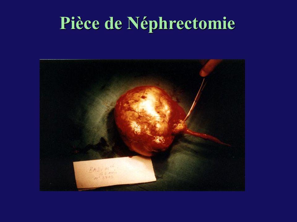 Pièce de Néphrectomie