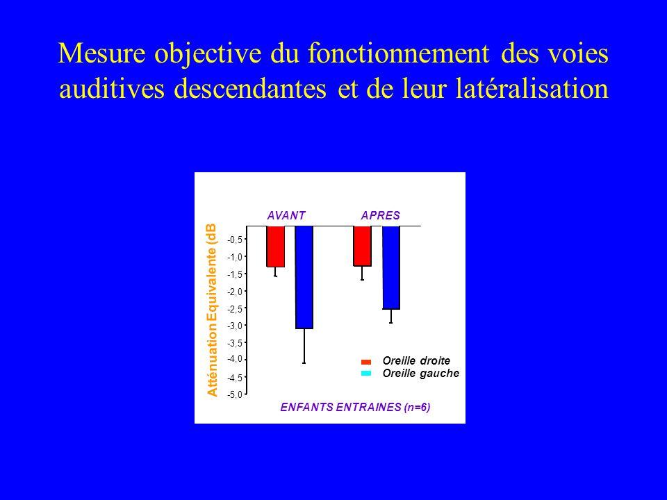 Mesure objective du fonctionnement des voies auditives descendantes et de leur latéralisation