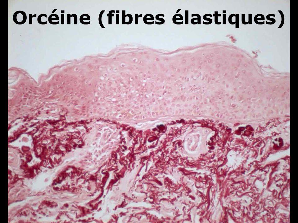 Orcéine (fibres élastiques)
