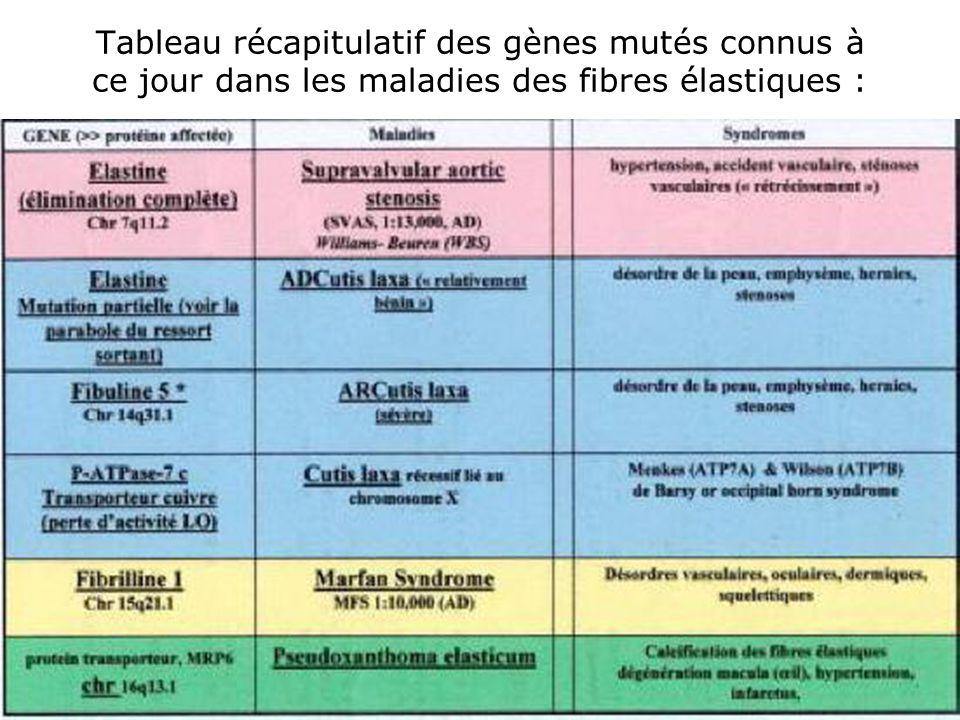 Tableau récapitulatif des gènes mutés connus à ce jour dans les maladies des fibres élastiques :