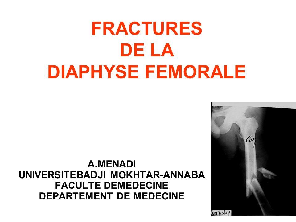 FRACTURES DE LA DIAPHYSE FEMORALE