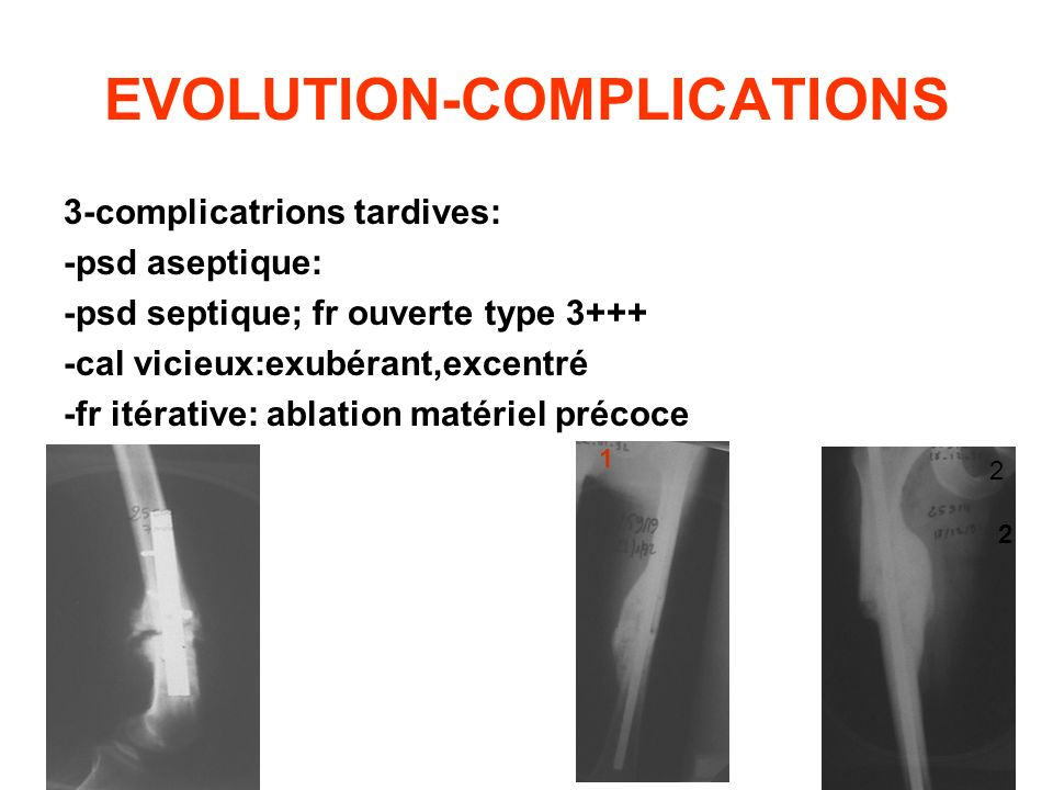 EVOLUTION-COMPLICATIONS