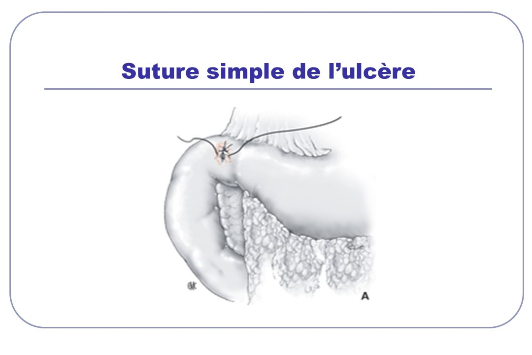 Suture simple de l'ulcère