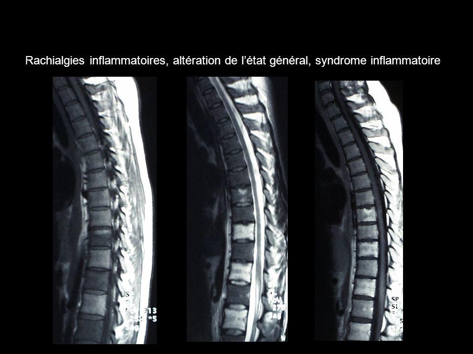 Rachialgies inflammatoires, altération de l'état général, syndrome inflammatoire