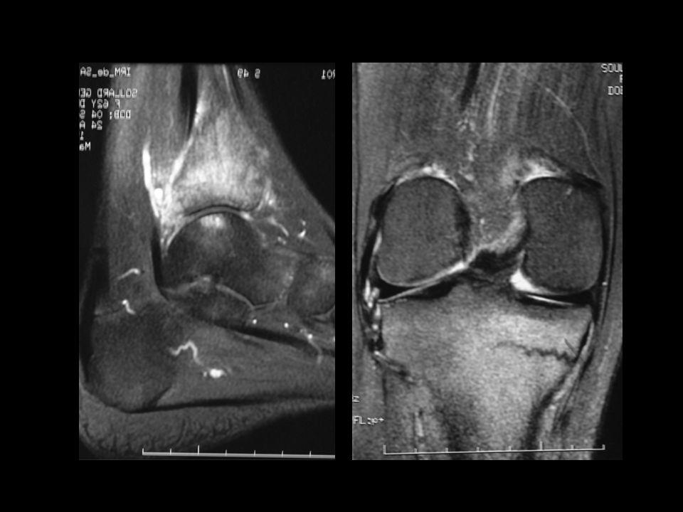 Sacro-iliite: diagnostics différentiels