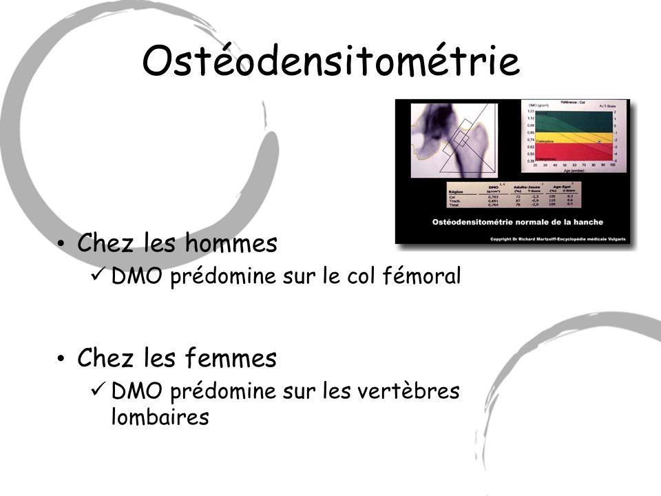 Ostéodensitométrie Chez les hommes Chez les femmes