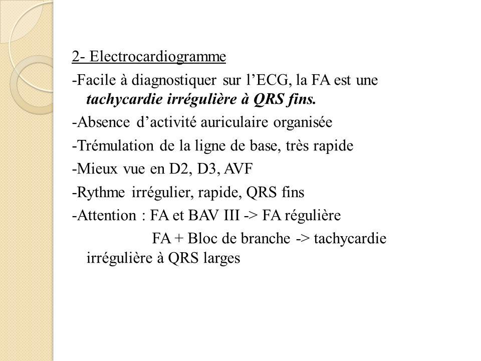 2- Electrocardiogramme -Facile à diagnostiquer sur l'ECG, la FA est une tachycardie irrégulière à QRS fins.