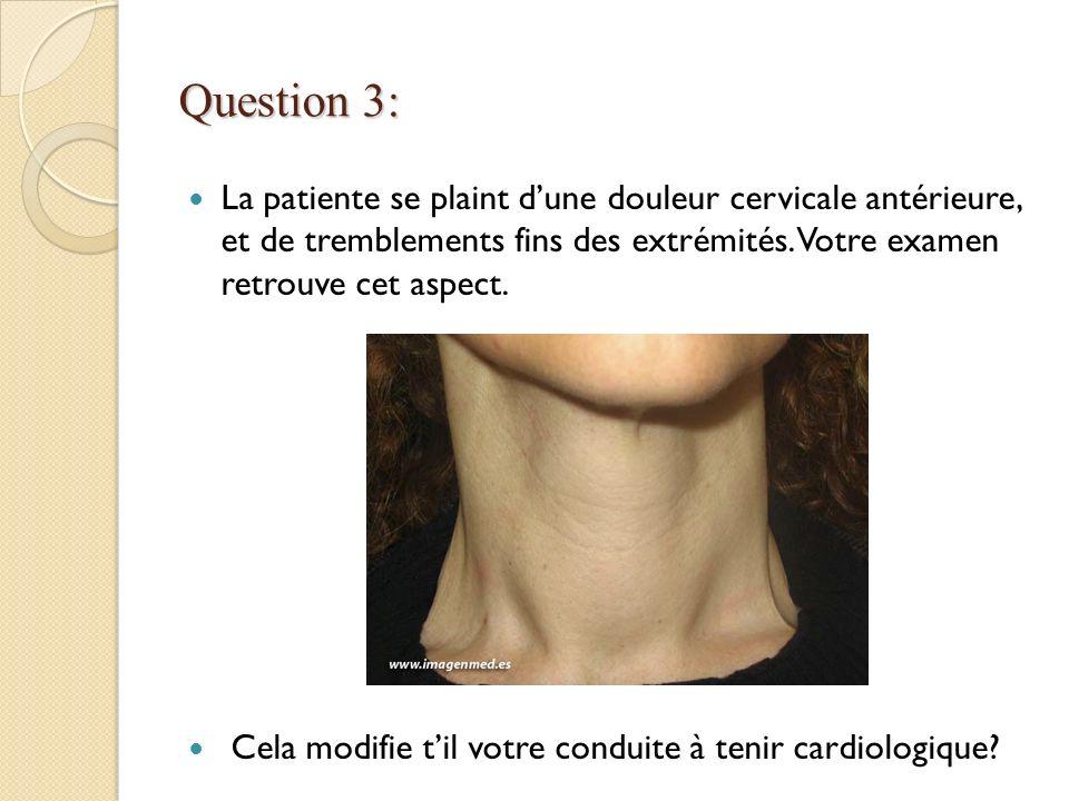 Question 3: La patiente se plaint d'une douleur cervicale antérieure, et de tremblements fins des extrémités. Votre examen retrouve cet aspect.