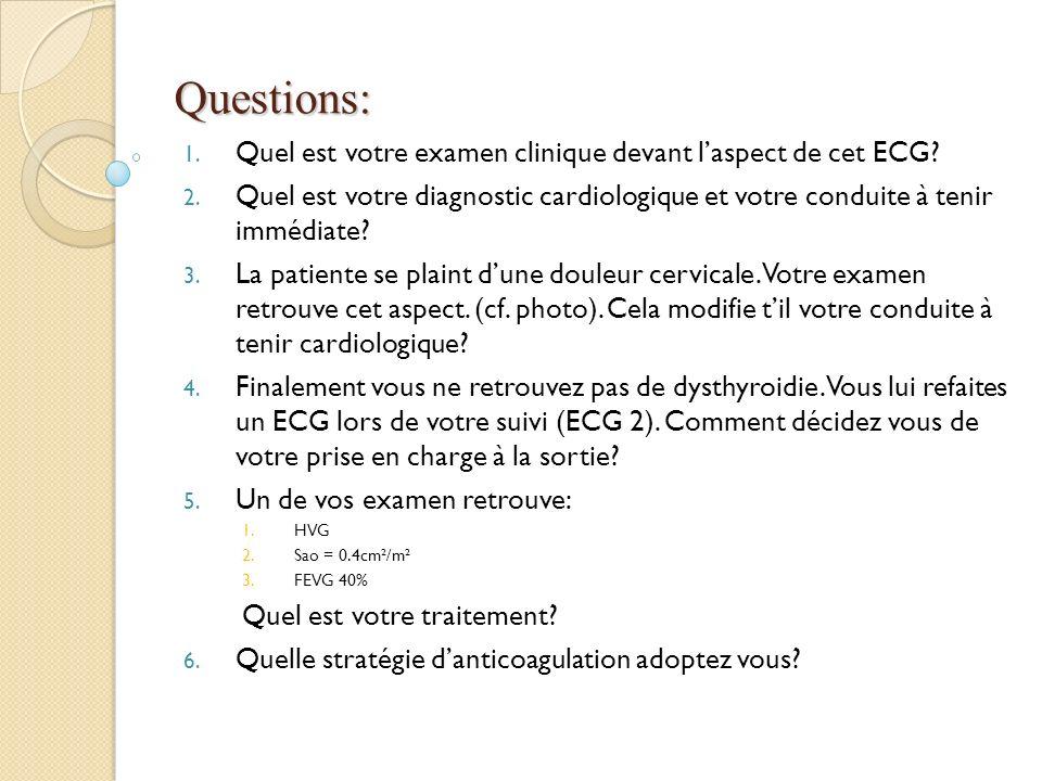 Questions: Quel est votre examen clinique devant l'aspect de cet ECG