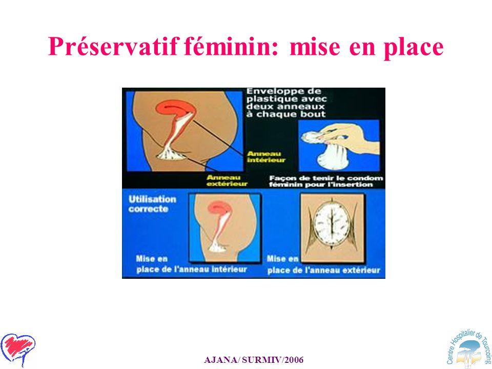 Préservatif féminin: mise en place
