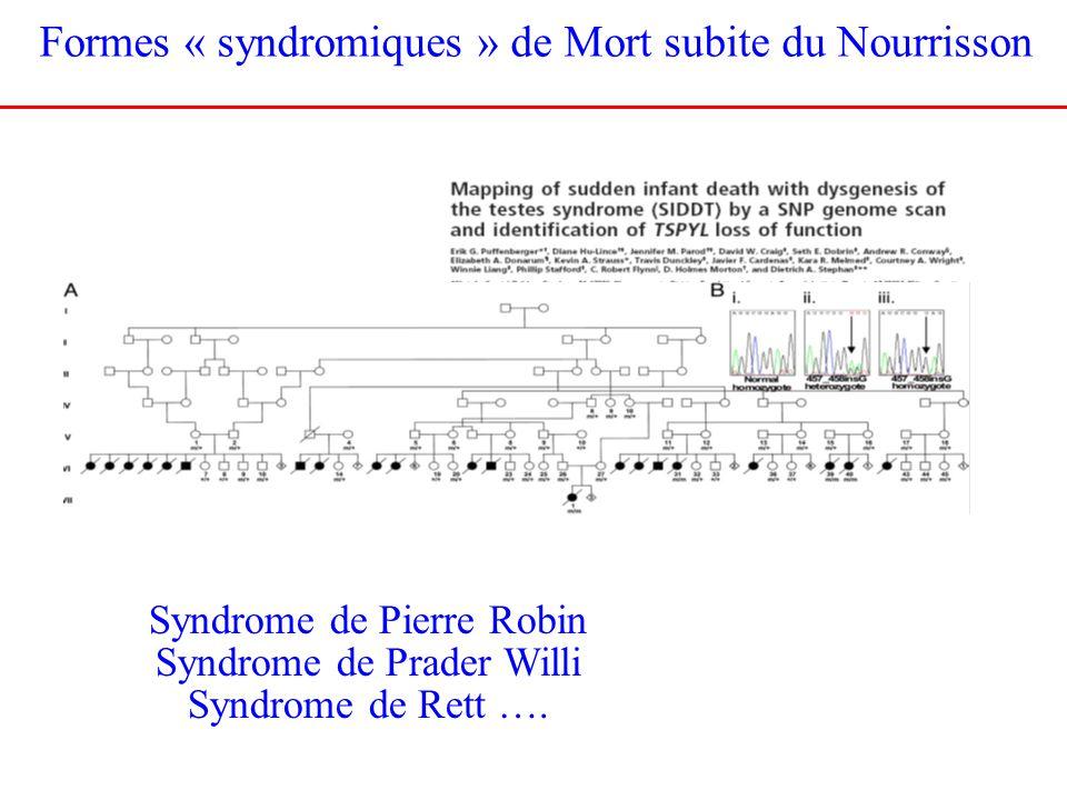 Formes « syndromiques » de Mort subite du Nourrisson