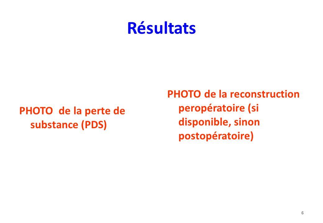 RésultatsPHOTO de la perte de substance (PDS) PHOTO de la reconstruction peropératoire (si disponible, sinon postopératoire)