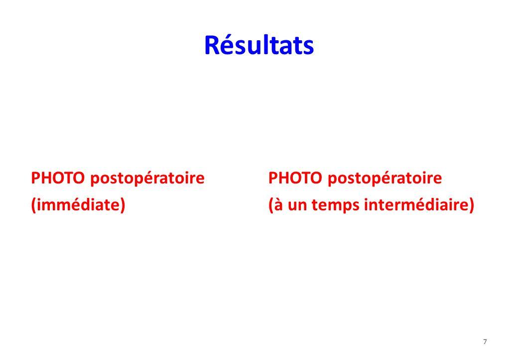 Résultats PHOTO postopératoire (immédiate) PHOTO postopératoire