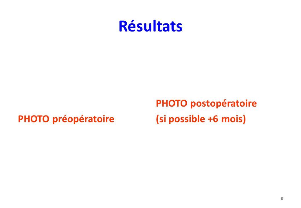 Résultats PHOTO préopératoire PHOTO postopératoire
