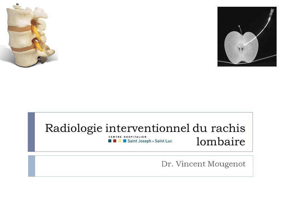 Radiologie interventionnel du rachis lombaire