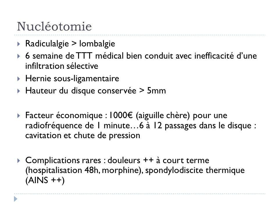 Nucléotomie Radiculalgie > lombalgie