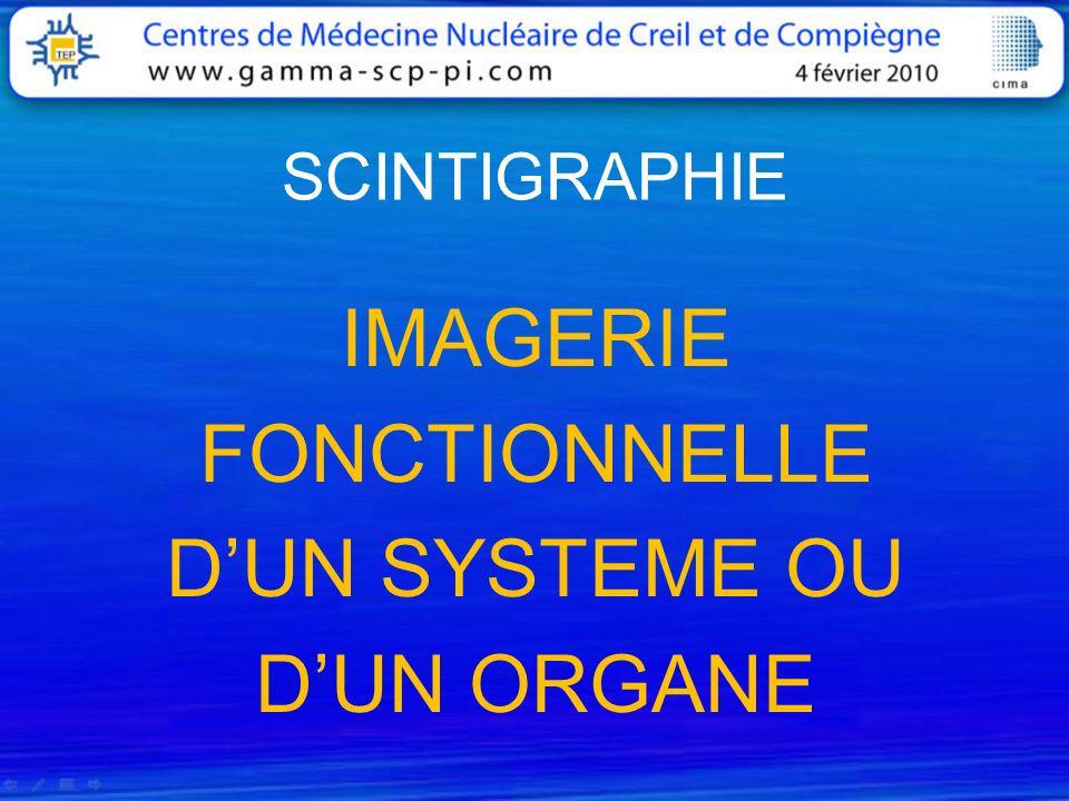 SCINTIGRAPHIE IMAGERIE FONCTIONNELLE D'UN SYSTEME OU D'UN ORGANE
