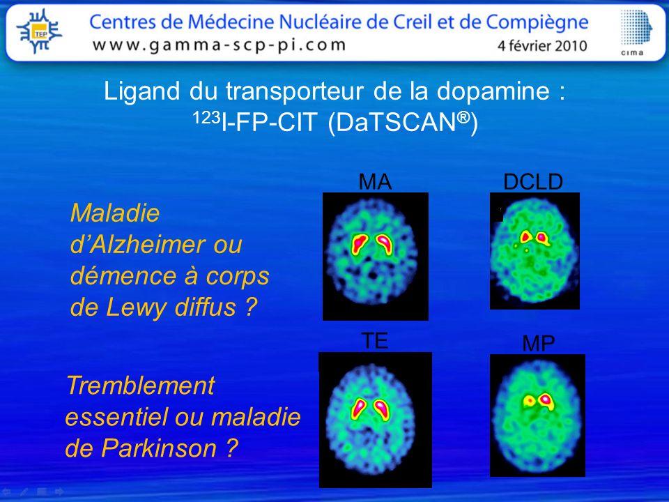 Ligand du transporteur de la dopamine : 123I-FP-CIT (DaTSCAN®)