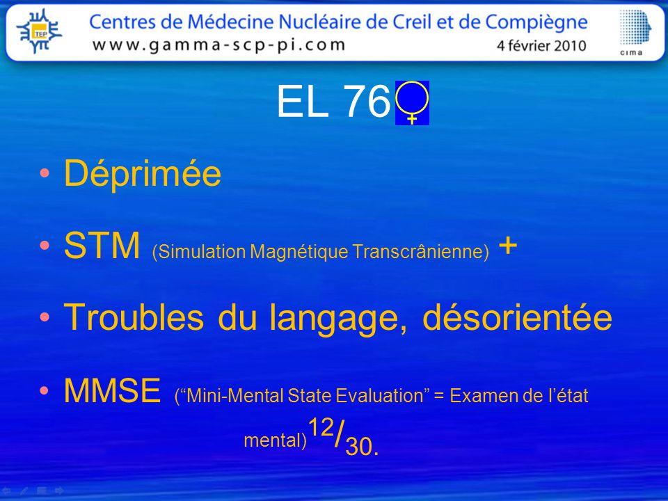 EL 76 Déprimée STM (Simulation Magnétique Transcrânienne) +