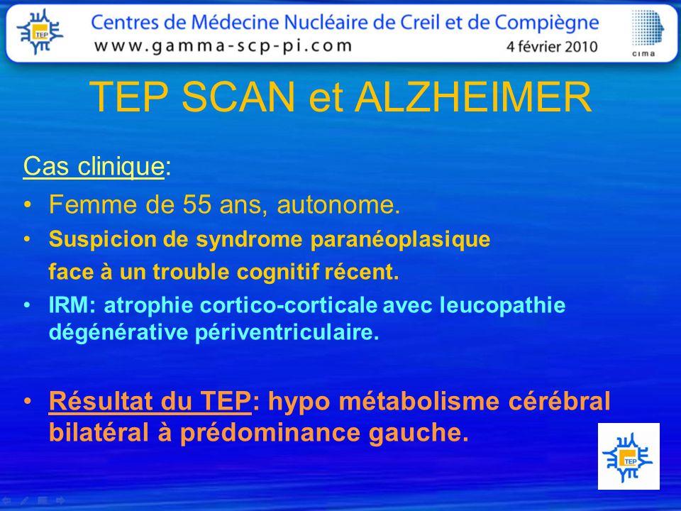TEP SCAN et ALZHEIMER Cas clinique: Femme de 55 ans, autonome.