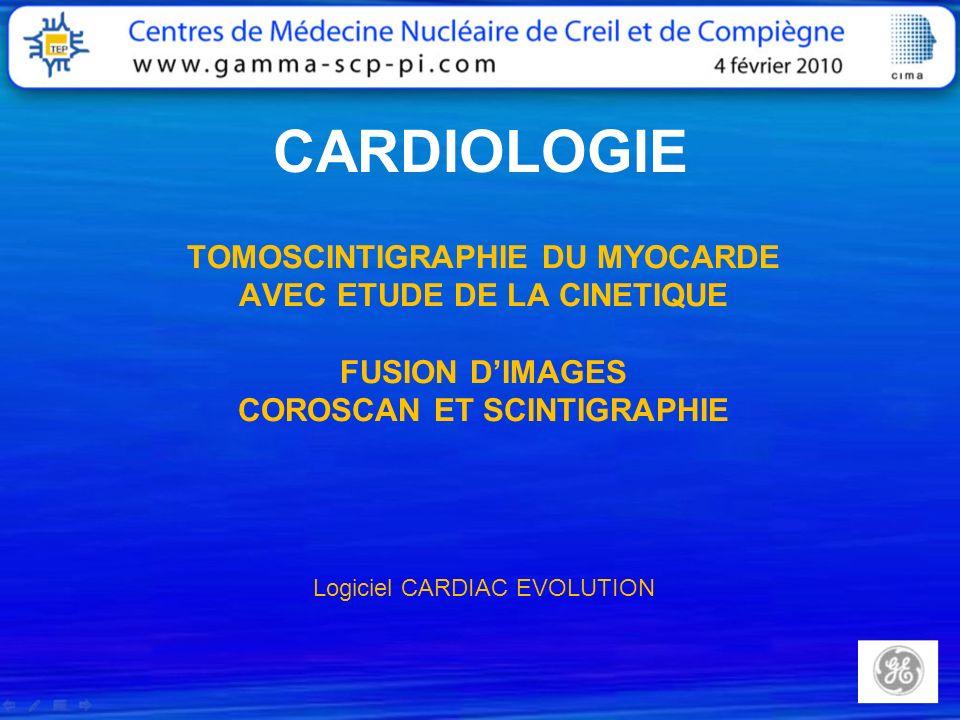 CARDIOLOGIE TOMOSCINTIGRAPHIE DU MYOCARDE AVEC ETUDE DE LA CINETIQUE