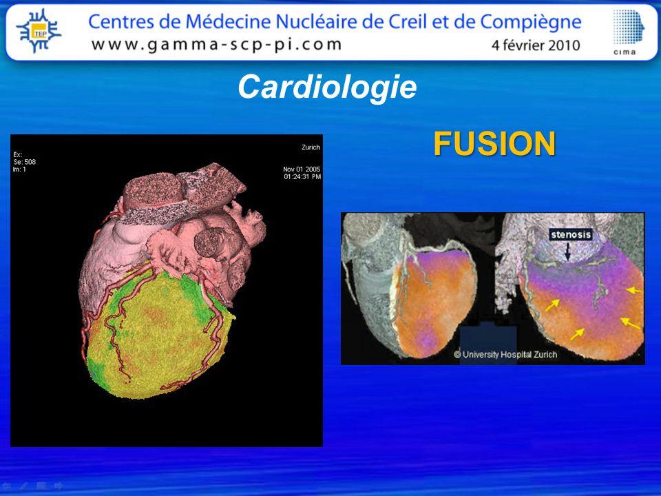 Cardiologie FUSION