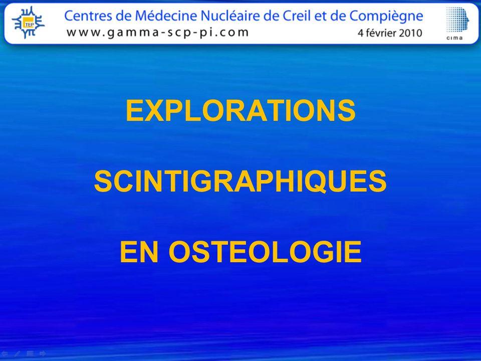 EXPLORATIONS SCINTIGRAPHIQUES EN OSTEOLOGIE