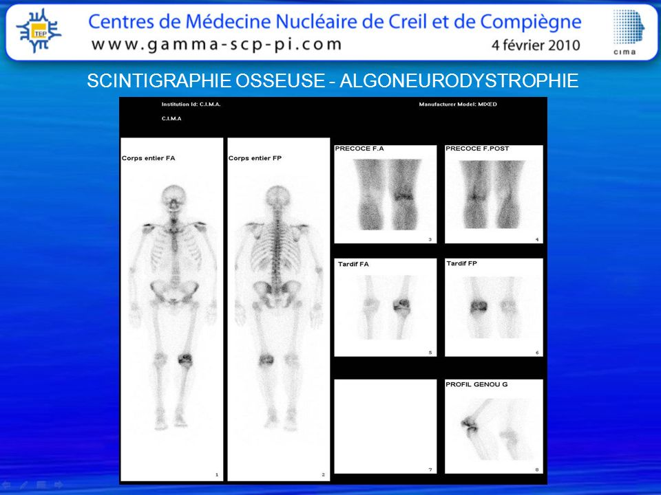 SCINTIGRAPHIE OSSEUSE - ALGONEURODYSTROPHIE