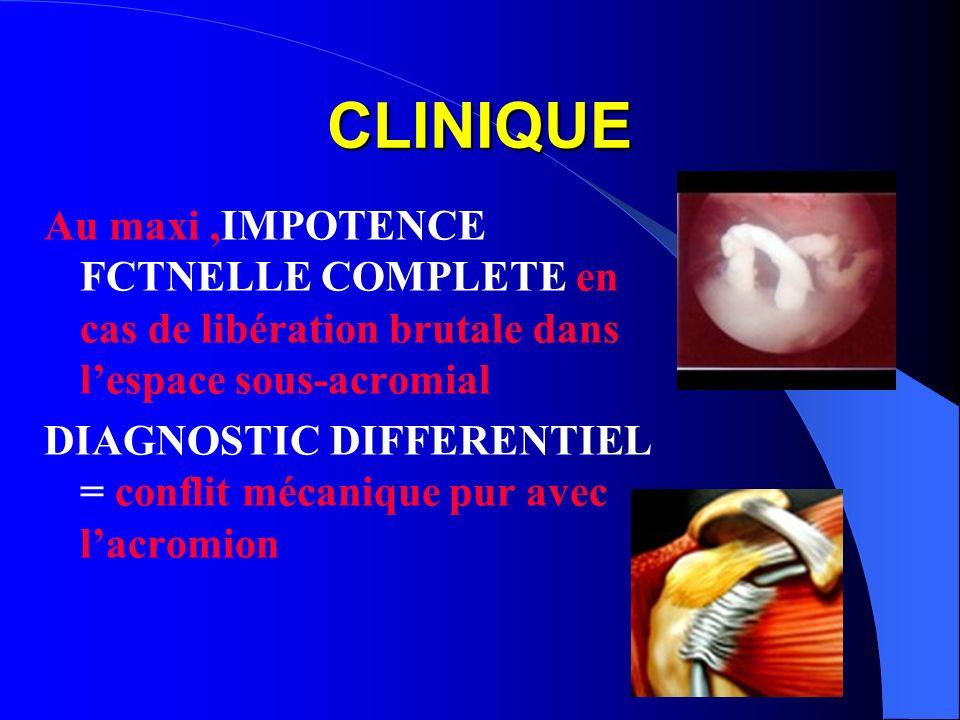 CLINIQUE Au maxi ,IMPOTENCE FCTNELLE COMPLETE en cas de libération brutale dans l'espace sous-acromial.