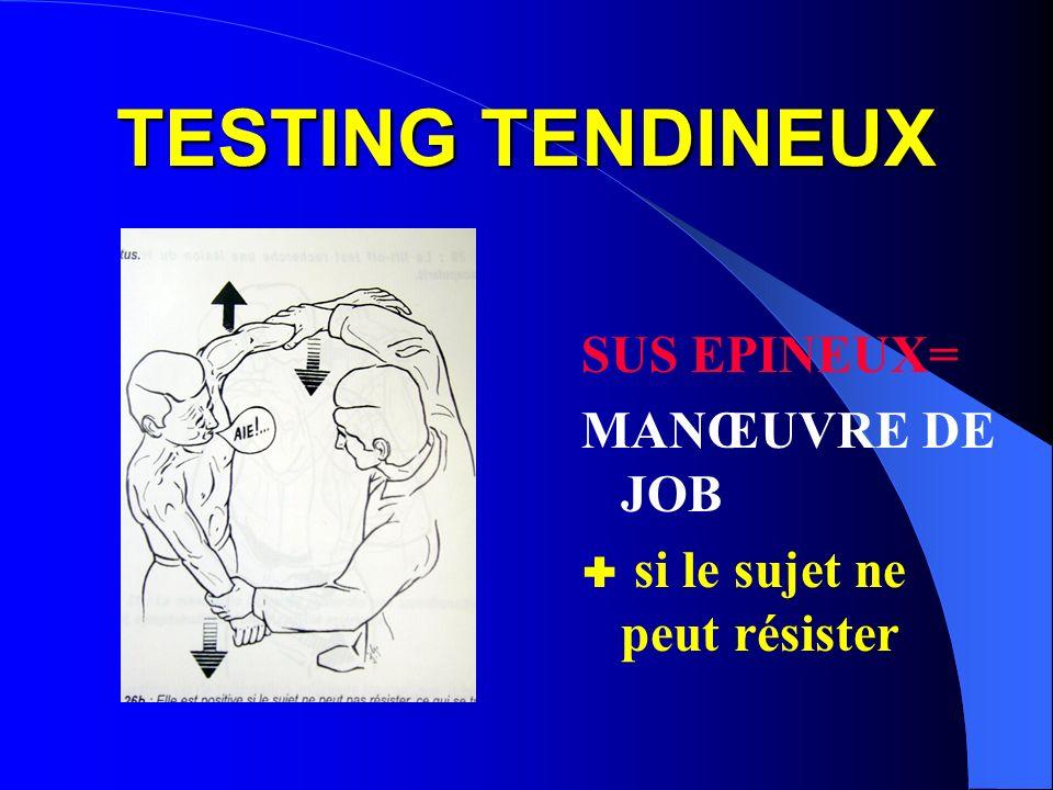 TESTING TENDINEUX SUS EPINEUX= MANŒUVRE DE JOB